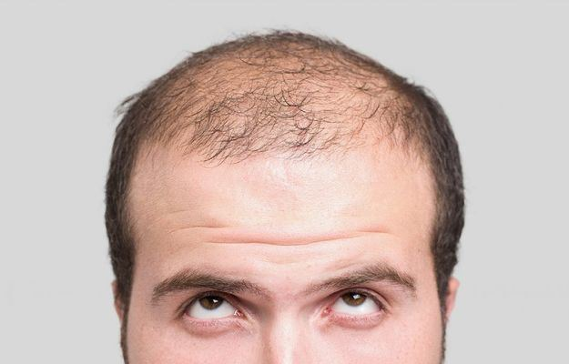 Consejos para prevenir la calvicie